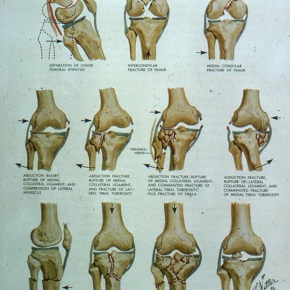 handcrafted Accessories - Vintage Medical Slide Photo Viewer Keychain knee